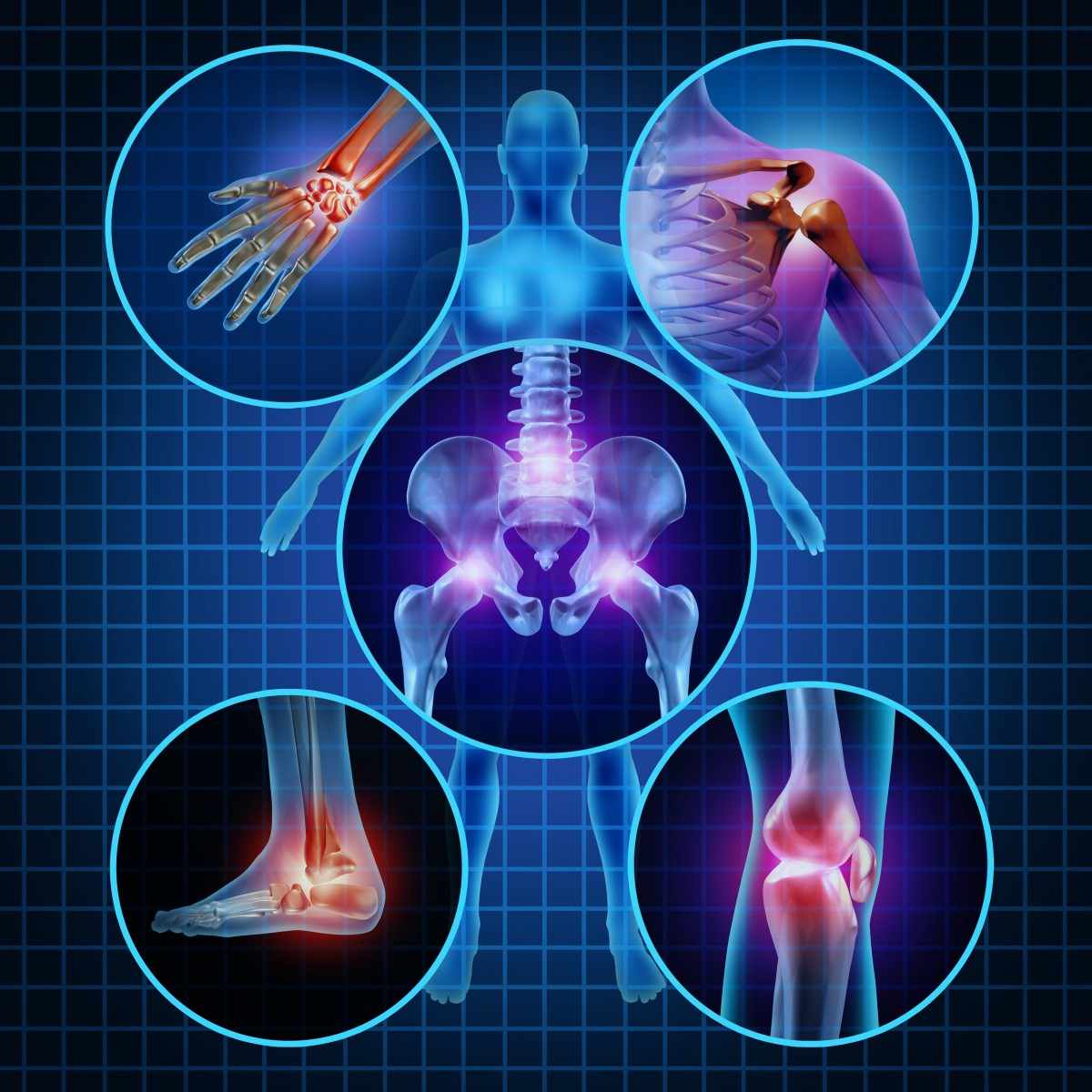 What Allows Remission in Patients with Early Rheumatoid Arthritis?