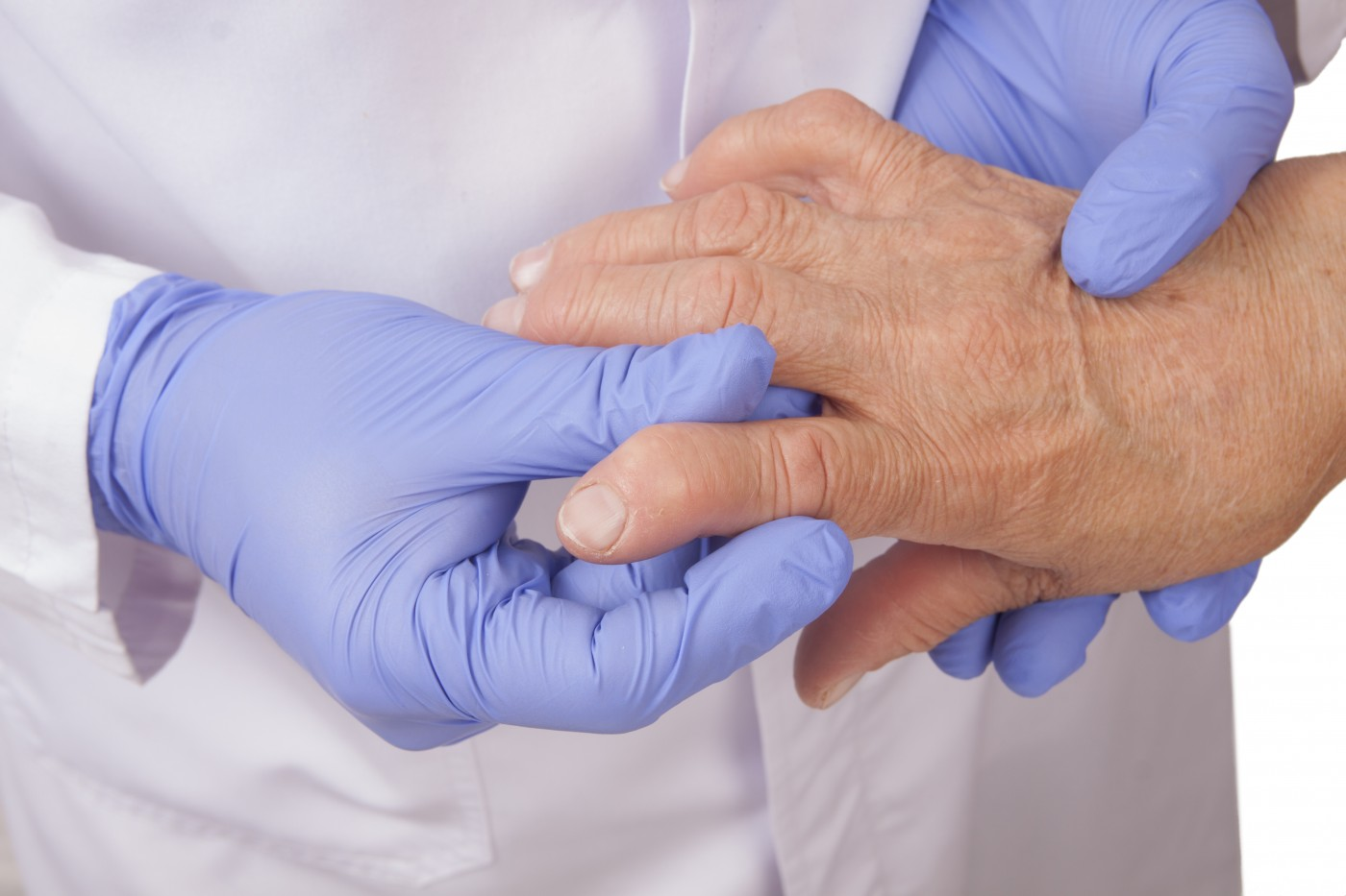Older Rheumatoid Arthritis Patients May Underestimate Disease Activity