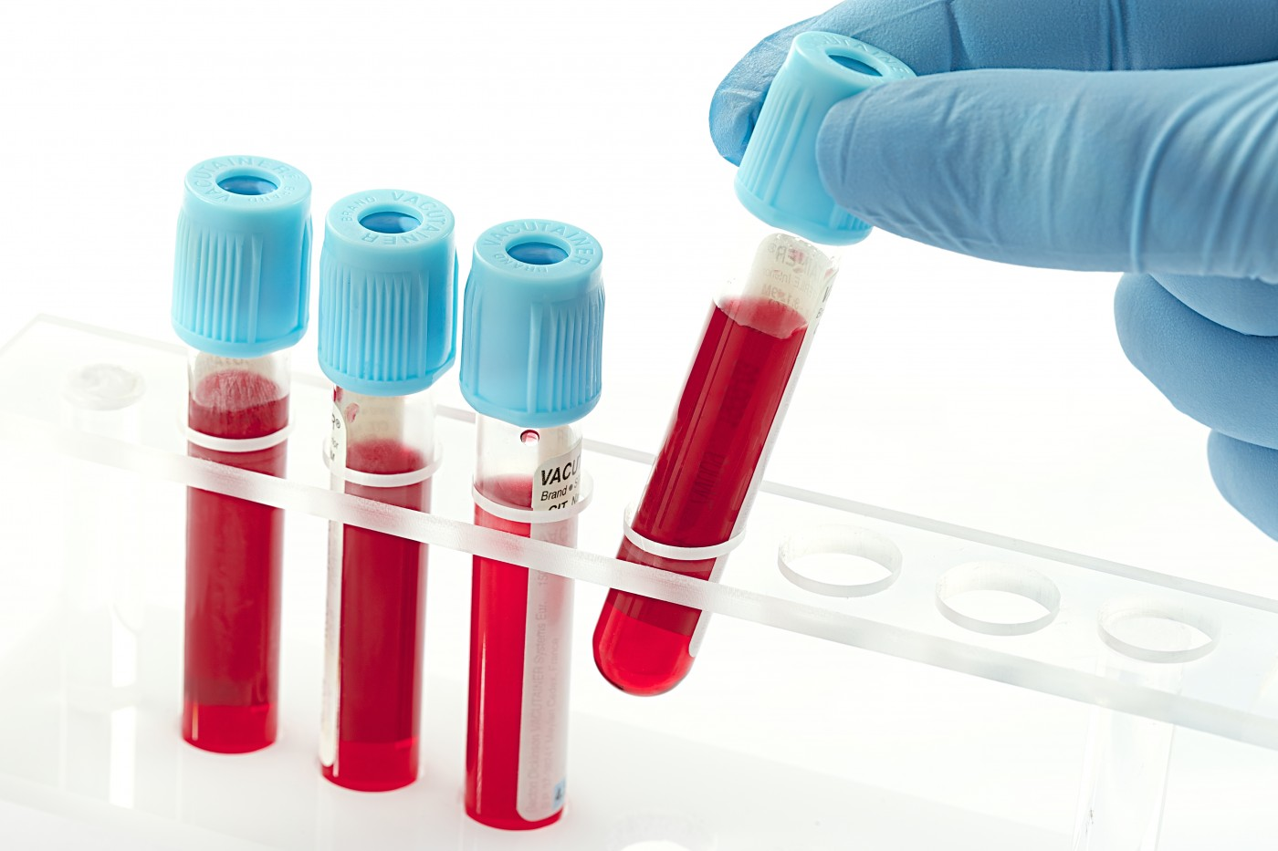 New Blood Test Can Potentially Predict Rheumatoid Arthritis Risk