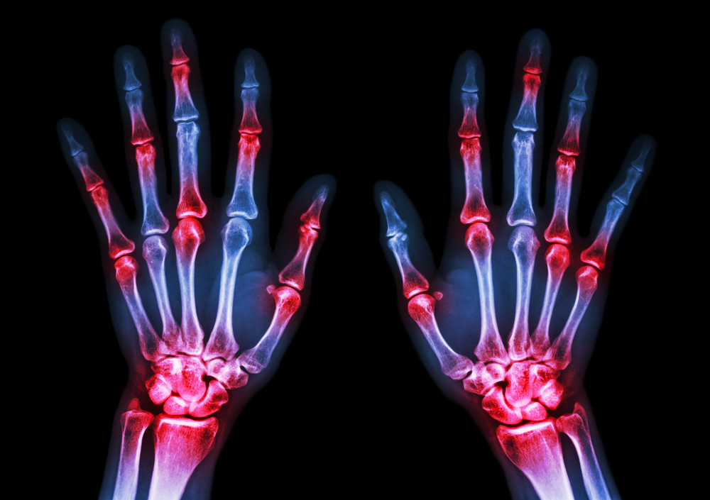 Wondering Why RA Treatments Only Work on Certain Joints? DNA Methylation May Hold an Answer