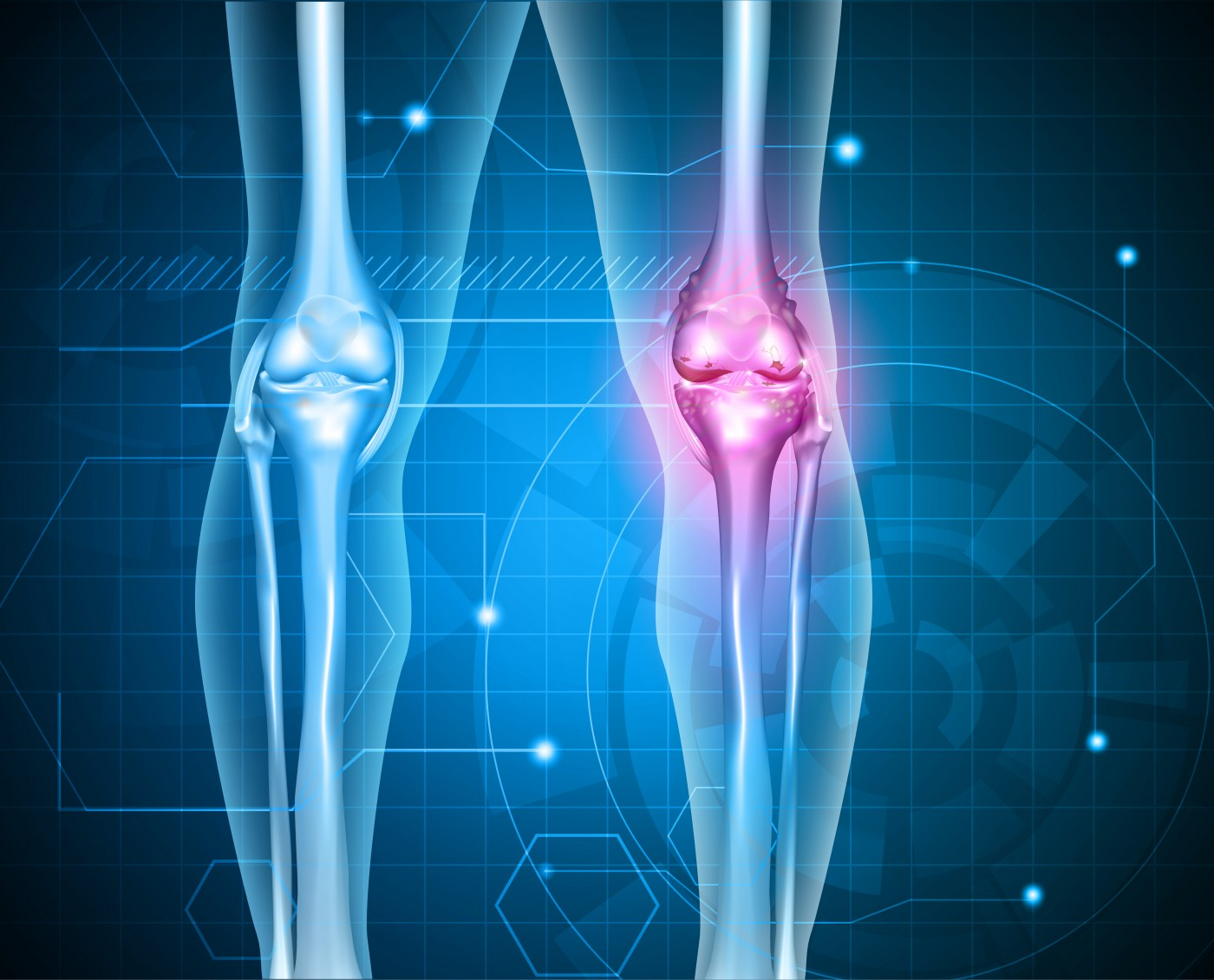 Study Provides Insight into Immune Differences in Patients with Early Rheumatoid Arthritis