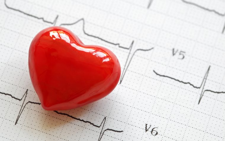Good HDL levels can reduce risk for cardiovascular events in RA patients